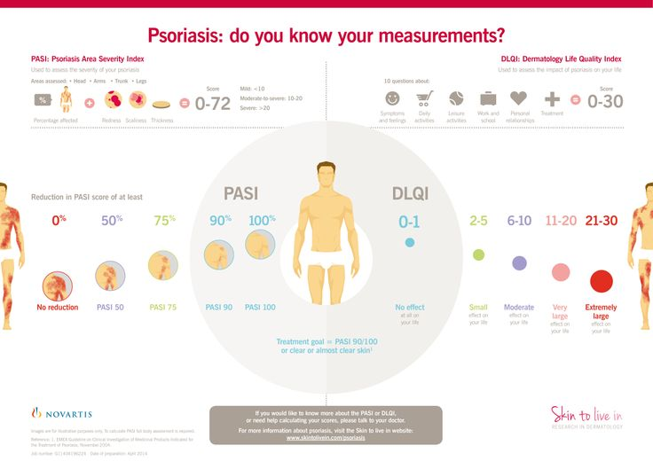Quality of life in psoriasis patients 2
