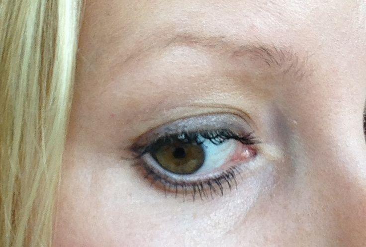 Tycker det börjar bli förändring runt ögonen, lite klarare hud än tidigare! Klar förbättring efter några dagar :)