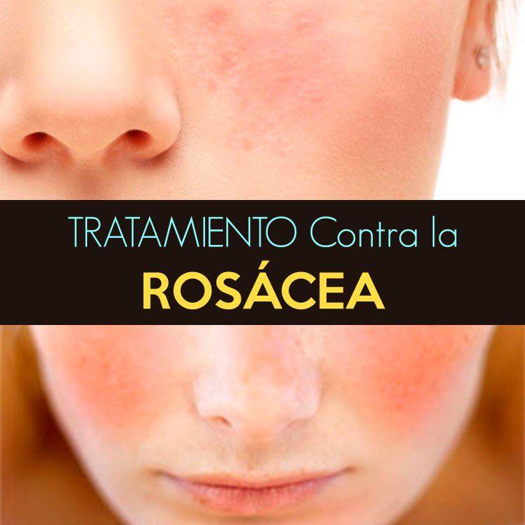 sintomas de la piel rosacea
