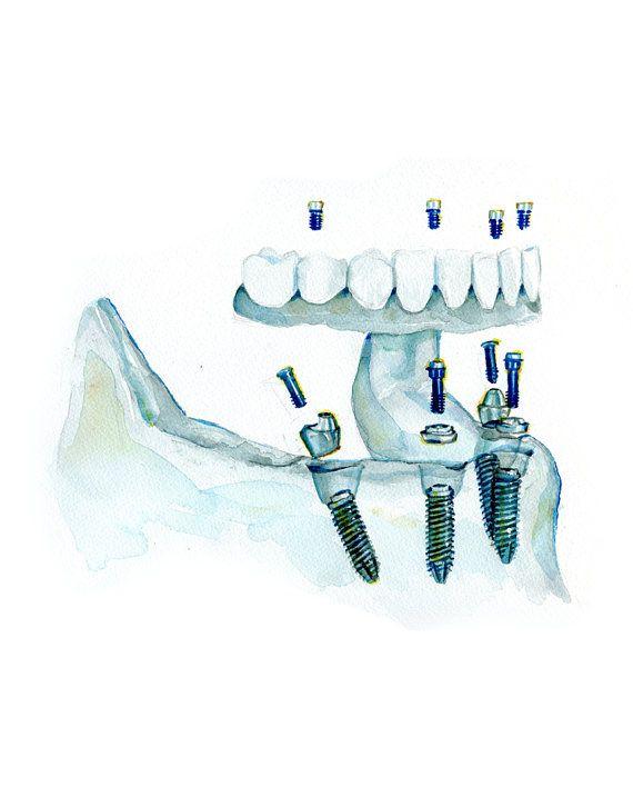 Imprimir Arte acuarela  todo sobre 4 implantes dentales
