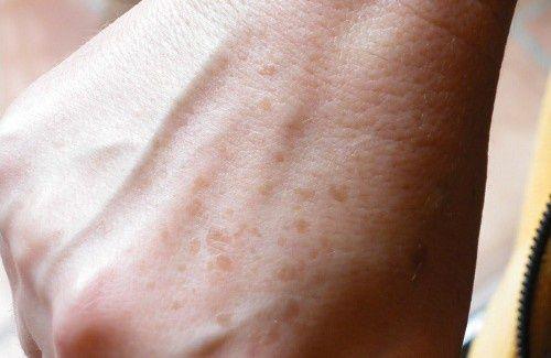 Come eliminare macchie e lentiggini dalle mani