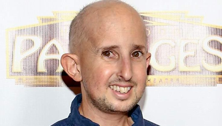 Ben Woolf the 4ft 4 inch tall actor who portrayed 'Meep' on the series 'American Horror Story: Freak Show' passed away due to a head injury.