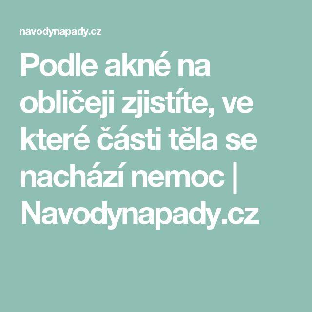Podle akné na obličeji zjistíte, ve které části těla se nachází nemoc | Navodynapady.cz