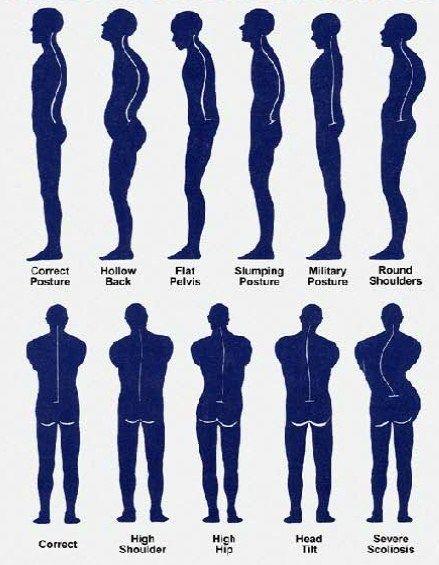 Alexander Technique Posture