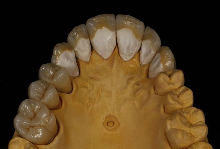 Prótesis Dental - Home