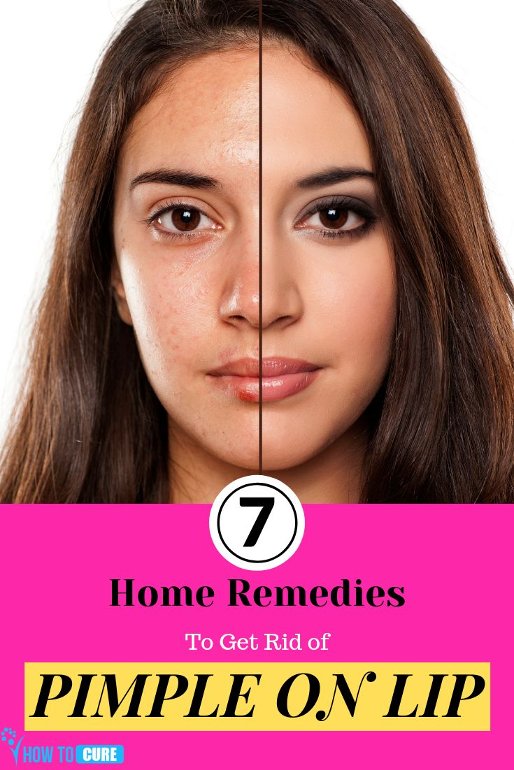 7 Home Remedies to Get Rid of Pimple on Lips – HowToCure