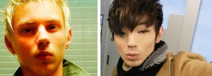 Blue Eyed Brazilian Man Gets Plastic Surgery To Look Korean