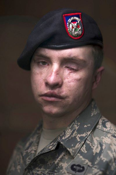"""Profile of courage - """"I'm still here."""" Senior Airman Mike Malarsie, USAF, is a tactical air control party (TACP) specialist. He was hit by a roadside bomb while he, one other TACP and 11 Army soldiers were on foot patrol near Kandahar, Afghanistan, January 3, 2010. He wants to remain in the Air Force;  """"Yeah, I'm blind, but I'm still here. I'm not going to let this wound hold me back … I don't want to take off the uniform. It's always been a dream of mine to be in the military."""""""