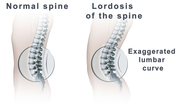 Image drawing of lordosis of the spine and how it affects the body's posture.