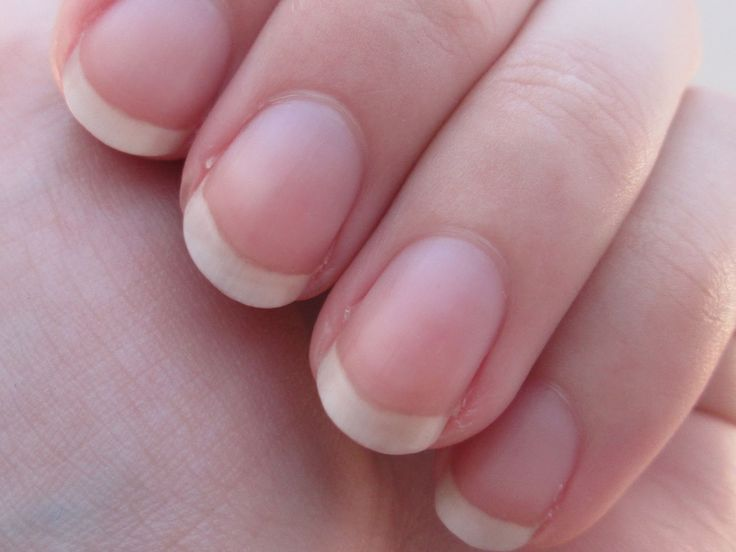 No moons on fingernails can mean low blood pressure and underactive thyroid gland. You should also watch for brittle nails, discolored nails, loose nails and other nail conditions.