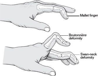 Mallet Finger, Swan Neck, Boutoniere