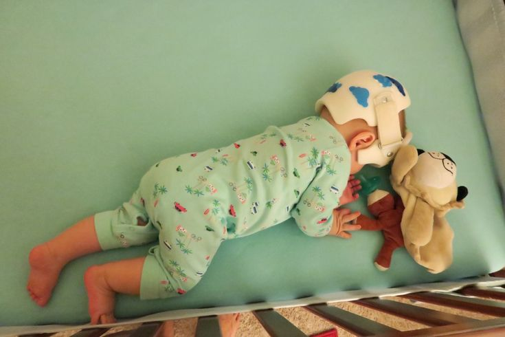 top 5 things to consider when dressing your baby with a plagiocephaly helmet - carters #lovecarters