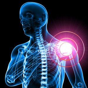 """M El """"hombro congelado"""" se desarrolla lentamente y su recuperación puede llevar meses"""