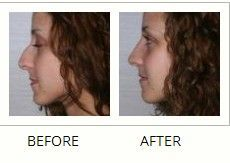 This women presented with a concern regarding the size of her nose. Cosmetic Plastic Rhinoplasty surgery was carried out in Toronto by Dr Philip Solomon.