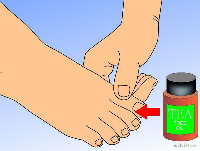 Cómo eliminar los hongos en los pies