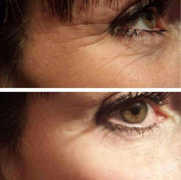 Wrinkles be gone :) Instantly Ageless by Jeunesse - most amazing product out there- you should try it! Message me!