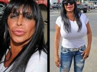 Plastic Surgery Gone Wrong: 15 Worst Celebrity Plastic Surgery