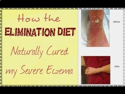 http:#x2F;#x2F;www.primephysiquenutrition.com - I get asked a lot on what type of diet I did to help my severe eczema heal naturally, so as a Holistic Nutritionist, ...