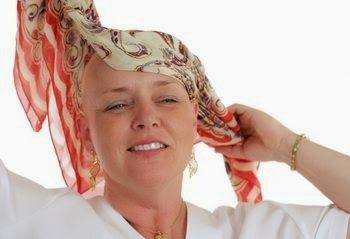 Chemotherapy Side Effects: Hair losshttp://www.howcancerkills.com/2014/10/chemotherapy-side-effects-rash-pain-hair-loss.html