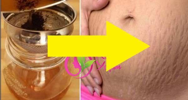 Toz şeker ile yırtılmış derilerden kurtulun, Yırtılmalarhamilelikten ve kilo alıp vermeden genellikle olur . Hanımlar losyonlar kremler lazer cerrahisi kimyasal peelingler iyi sonuç alınmamaktadır. Cildin ton olan güneş ışınlarının zararlı etkisinden yaş yaşında önemli ölçüleri vardır Bu yırtılmalar da bu doğal yöntemle cerrahi veya kimyasal maddelerin uygulanması olmadan deri yırtılmaları azalmaktadır ve ortadan kalkmaktadır. Hanımlar …