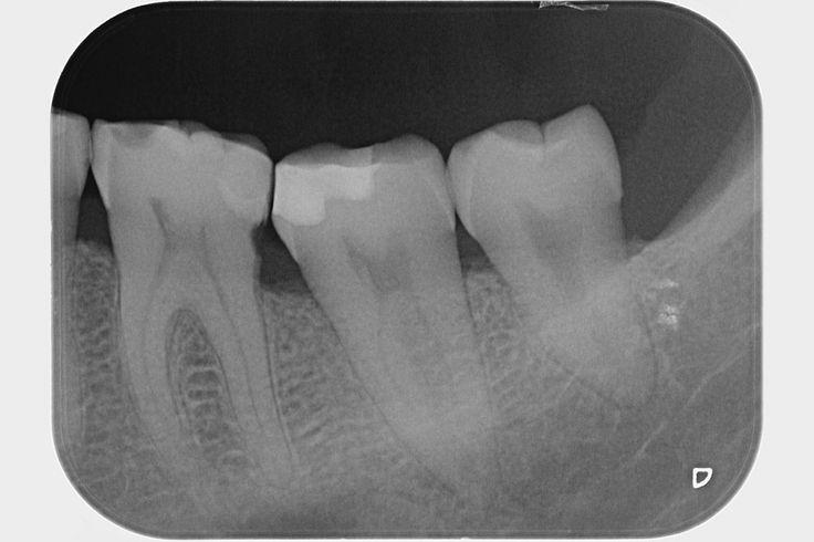 Consultation - retro-alveolar radiography #dentist #dental treatment