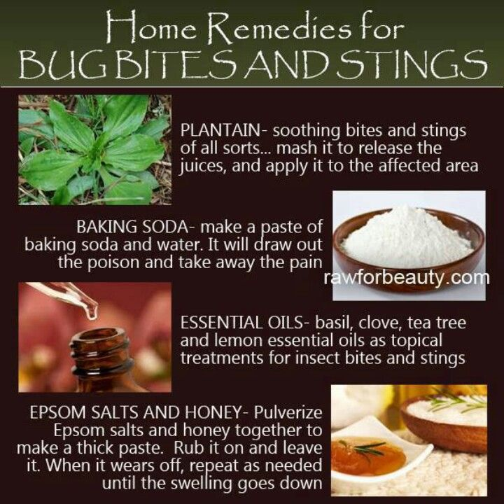 Best Natural Remedy For Insect Bites