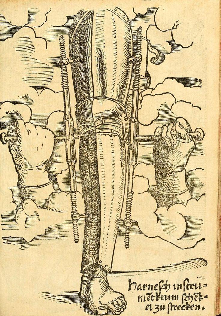 Artist: Hans Wechtlin, Title: Feldbuch der Wundartzney, Page: 105, Date: 1528