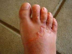 Cacing tambang adalah suatu penyakit yang disebabkan oleh infestasi parasit Necator Americanus dan Ancylostoma Duodenale. Daur hidup, siklus, skema, gambar