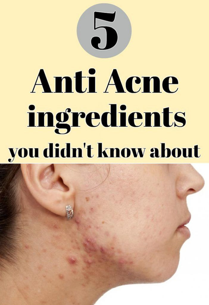 """We know what headaches treating or preventing acne gives you. It is possible that the """"miracle"""" treatment you heard or read on beauty websites has no effect on you. If nothing suits you, we suggest the following alternative options: 1. Sulfur You must know that sulfur does not smell too pleasant, but it is very …"""