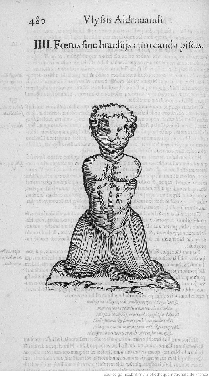 [Fig. p.480 : enfant sans bras et avec nageoire caudale.] Infans (...). [Illustrations de Ulyssis Aldovandi Monstrorum historia] / Jean-Baptiste Coriolan, grav. ; Ulisse Aldrovandi, aut. du texte, 1642