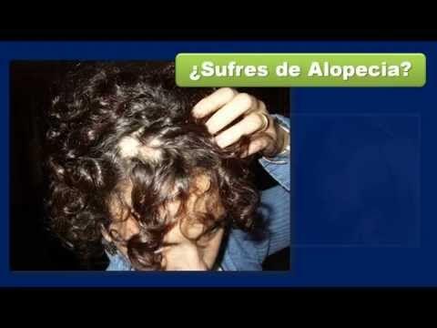 alopecia femenina - tratamiento alopecia - tratamiento alopecia areata
