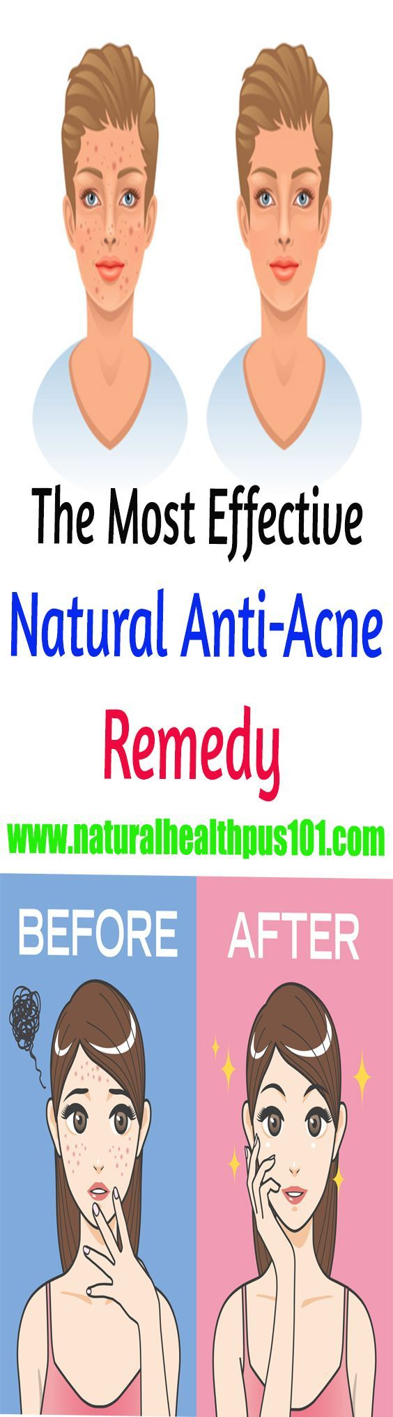 pimple treatment for oily skin, how to cure pimples in one day, home remedies for pimples marks, pimples on face treatment at home in hindi, how to cure acne naturally in 3 days, how to remove pimples naturally, best home remedy for acne overnight, how to remove pimples in one day,