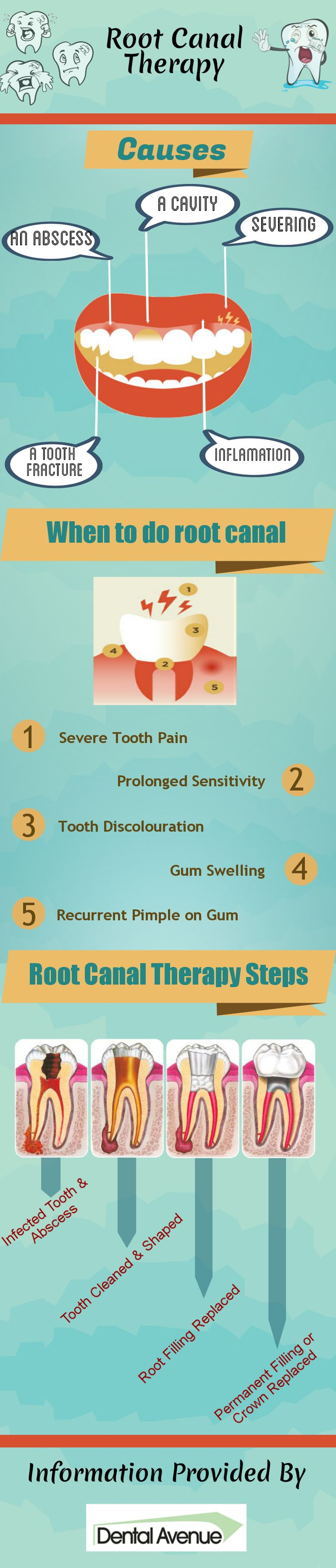 Root canal is an important dental treatment. This treatment is undertaken for treating severe tooth pain, sensitivity, discolouration, gum pimples and swelling of gums. In this procedure the diseased pulp of a tooth is removed and the inside areas are filled and sealed.