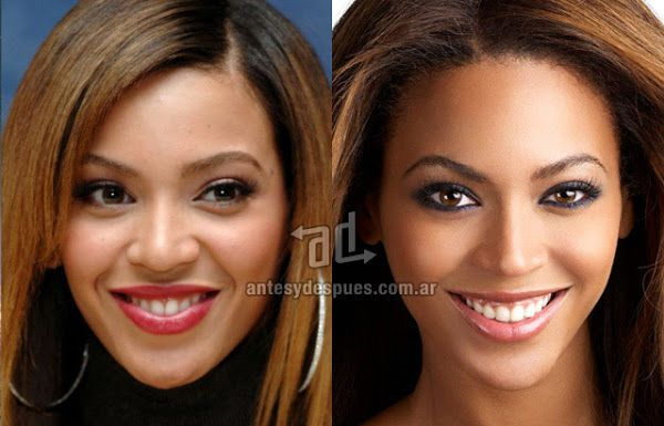After meticulously examining photos of Beyoncé's physical changes over the years, it can be determined with exact certainty that she has had not one, but three nose jobs. Description from celebritynosenjob.blogspot.fi. I searched for this on bing.com/images
