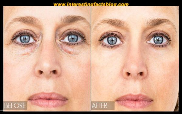 Know more information about eye bags causes, eye bags home remedies, eye bags treatment, under eye bags, under eye bags at www.interestingfactsblog.com