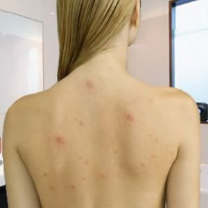 3 Most Common Back Acne Treatments - Great To Know For Backless or Strapless Wedding Dresses