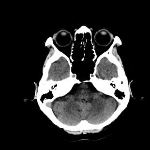 Low dose routine head clinical image