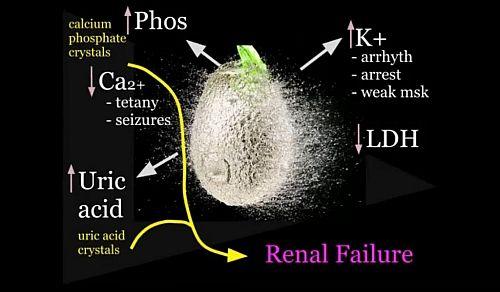 Photo of Electrolyte disturbances in Tumor Lysis Syndrome