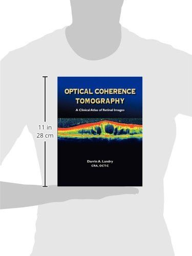 Optical Coherence Tomography: A Clinical Atlas of Retinal Images