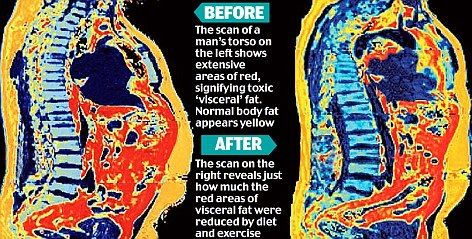 Excess fat around the organs (visceral fat) is harmful to long term health but is quite easy to lose if targeted correctly. Subcutaneous (under the skin) fat on the other hand is much less harmful to health but up to three times harder to lose. Knowing exactly how the body is composed is therefore an essential part of any health assessment or successful weight loss program.