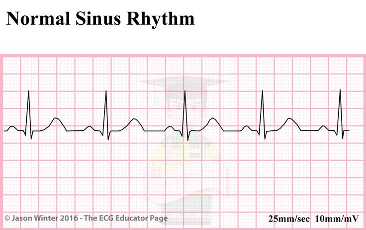 ECG Educator Blog : Sinoatrial Node rhythms
