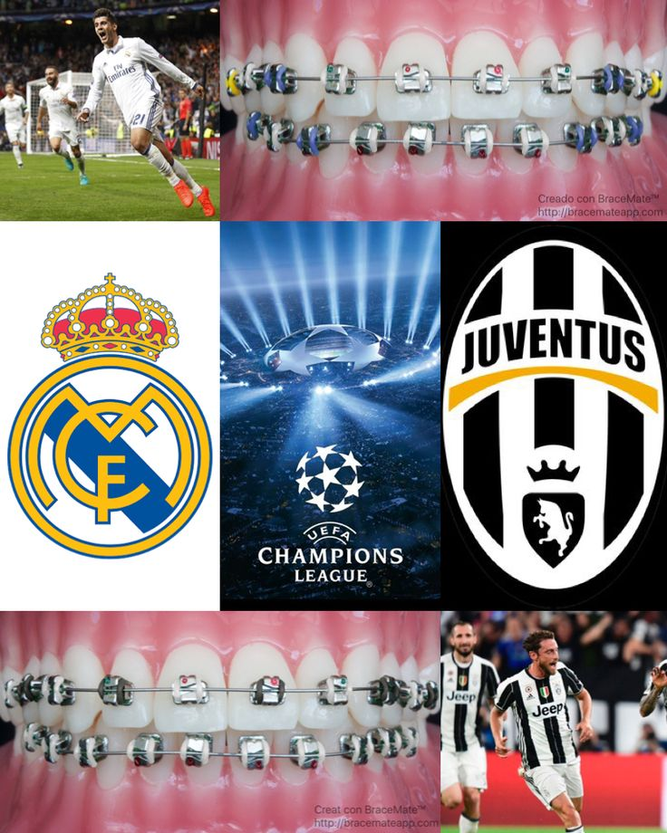 Juventus vs Real Madrid - Champions League Final. Who are the champions of Europe?  #Juventus #juventusfc #Juve #Turin #Piedmont #Italy #Italian #Italia #RealMadrid #RealMadridCF #Real #Madrid #Spain #Spanish #España #dentista #dentale #colori #calcio #ortodontista #ortodonzia #odontoiatria #dental #colores #fútbol #ortodoncista #ortodoncia #odontologia #campeones