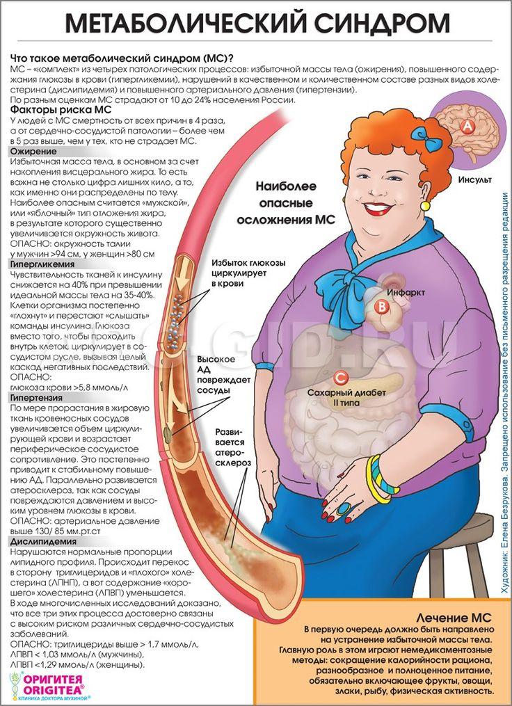 Метаболический синдром — целый комплекс нарушений, пусковым механизмом которых является ожирение по мужскому типу (отложение жира в районе талии, фигура по типу «яблока»). В него входят и резистентность тканей к инсулину с развитием сахарного диабета II типа, и атеросклероз, и стойкая артериальная гипертензия, и повышенная склонность к тромбообразованию.