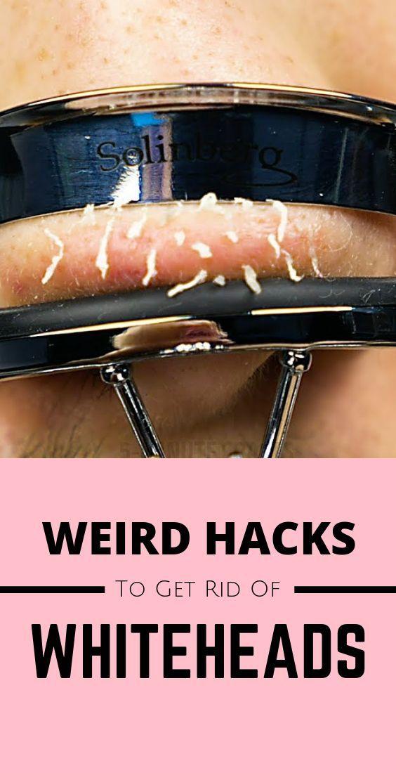 Ein sehr einfacher Hack, um Mitesser / Whiteheads …