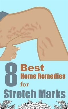 8 Best Home Remedies For Stretch Marks❤︎ #goodtoknow #tips #howto