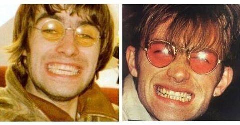 Liam Gallagher/ Damon Albarn 90s Oasis vs Blur