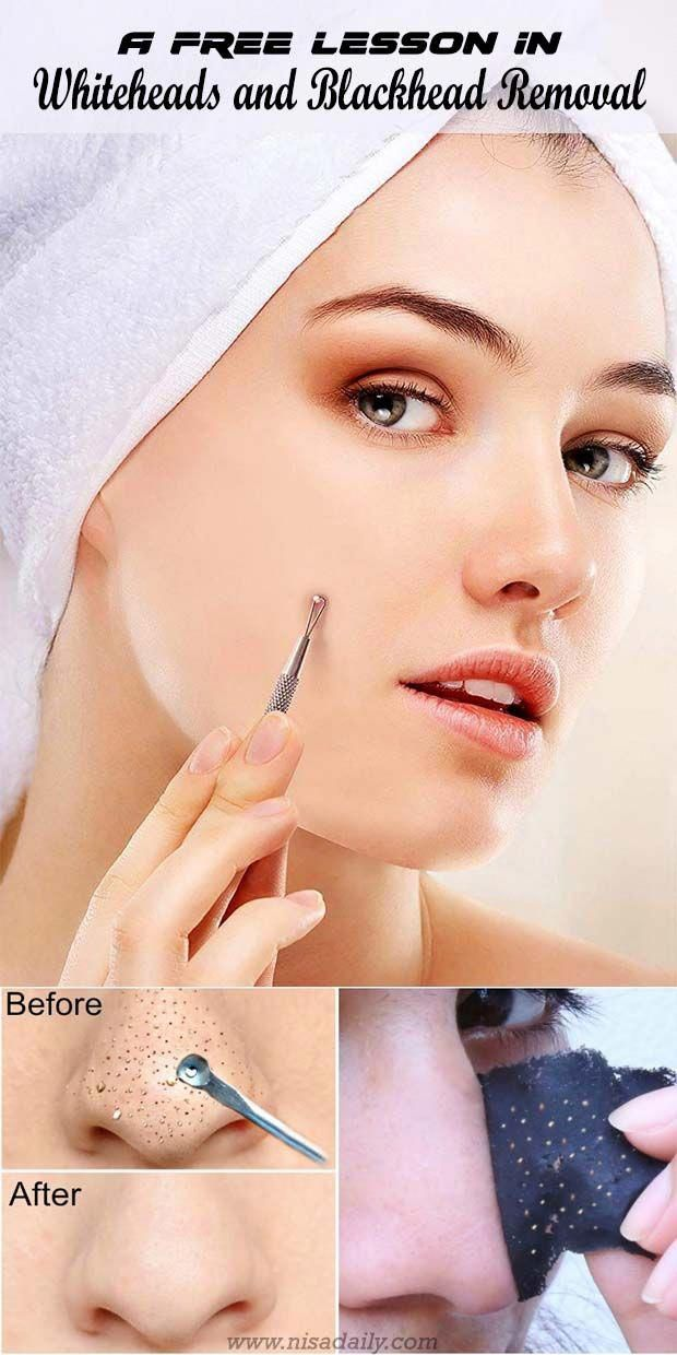 Let's talk about white and blackhead Removal DIY m…