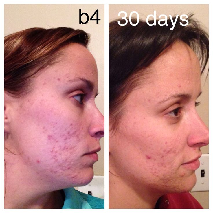 30 day acne real results