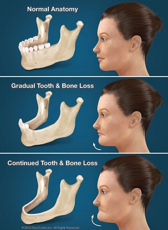 When you lose your teeth your jaw bone slowly deteriorates away which will change the look of your face. Dentaltown - Patient Education Ideas
