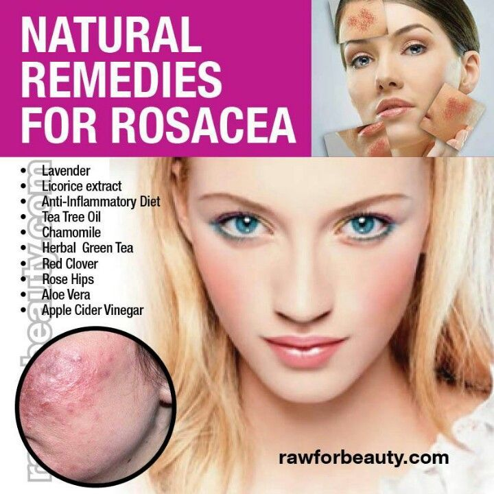Home Remedies For Rosacea - Natural Care